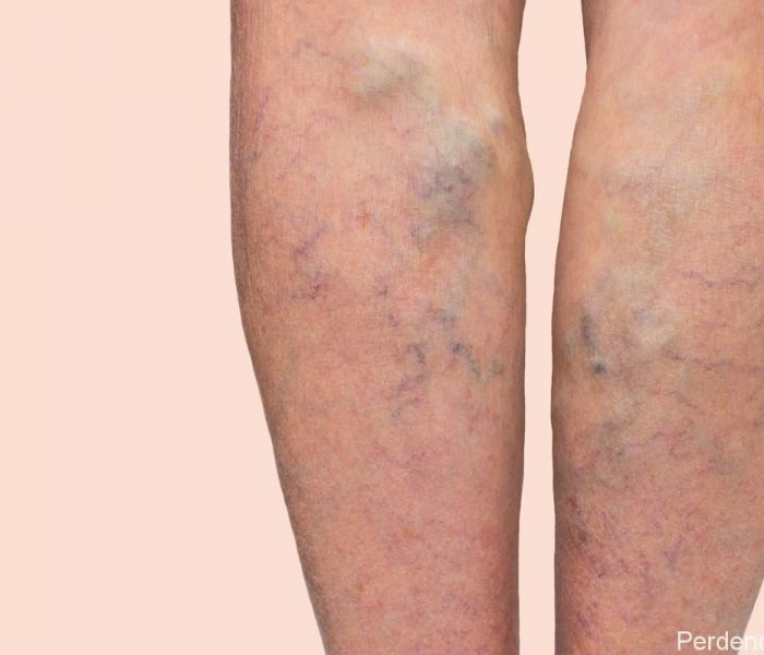Varicose Veins in Tradicional Chinese Medicine